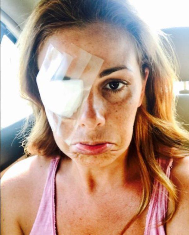 Vanessa Incontrada ferita all'occhio : Un trucco ha fatto allergia