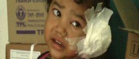 India : La piccola Radhika Mandloi con 80 vermi nell