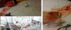 Napoli, si ritrova il rapinatore in casa : Titolare di una pizzeria lo accoltella per difesa