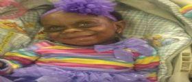Mariah Anderson | Mamma posta sui social la foto della figlia affetta da malattia rara