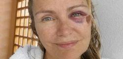 Licia Colò su Facebook con un occhio nero e una botta in testa