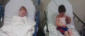Texas, La maestra non ci ha messo la crema : Due fratellini finiscono in ospedale con gravi ustioni