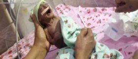 India : la bimba nasce malata e prematura e viene abbandonata dai genitori
