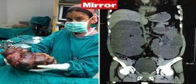 New Delhi : Operato d