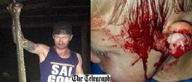 Australia : Mamma sente le urla del figlio di 6 anni aggredito da un serpente