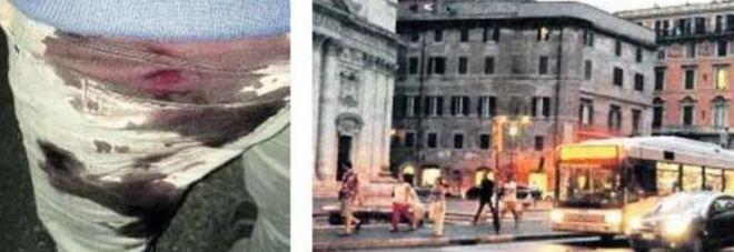 Roma - 29enne accoltellato in pieno centro senza motivo : Gli aggressori volevano divertirsi