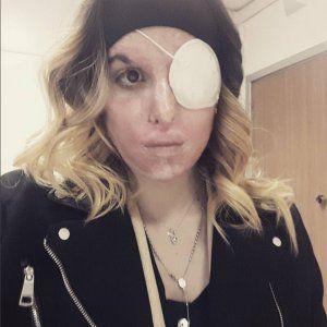 Gessica Notaro su instagram : Sfregiata con acido posta un selfie