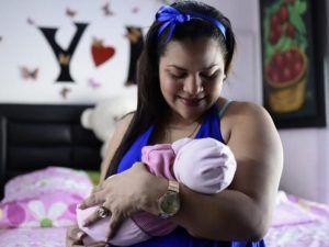 Era incinta della sua gemella parassita! La piccola Itzmara sottoposta a taglio cesareo 24 ore dopo la nascita