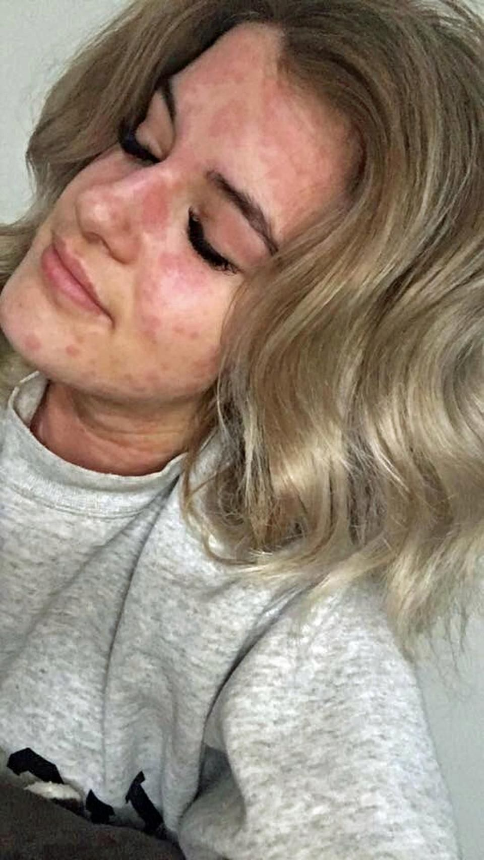 Arianna Kent è allergica all'inverno! In ospedale anche per uno spiffero