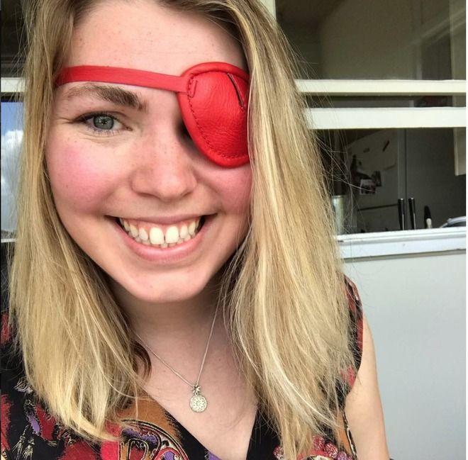 Il cancro mi ha mangiato un occhio! ma non è finita ... la terribile storia di Jess Van Zeil
