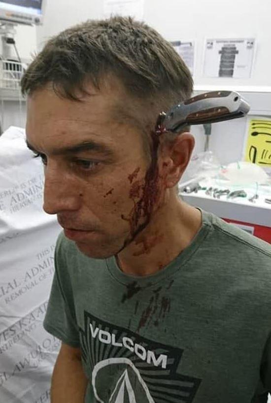 C'è un dottore libero?... va in ospedale con un coltello in testa