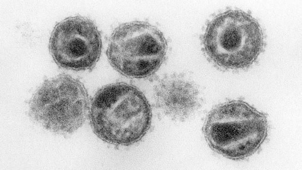 Aids, Iss: seimila italiani affetti da virus non diagnosticato