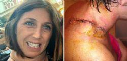 Troppe lampade abbronzanti fanno male! Sarah sviluppa due tumori della pelle in 6 anni