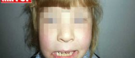 Amelia Quinnen : la bimba allergica alla sabbia