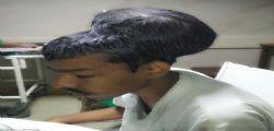 India : Rimosso il tumore al cervello più grande al mondo - Saltlal Pal aveva due teste