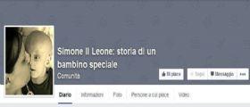 Simone il Leone, storia di un bambino speciale : Il Piccolo affetto dalla Sindrome di Lenz-Majewski