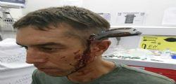 Lo aggrediscono brutalmente e arriva in ospedale con una lama conficcata nel cranio