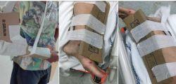 Ospedale di Reggio Calabria : fratture immobilizzate con i cartoni