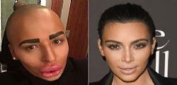 Jordan James Parke : spende 150mila dollari per essere uguale a Kim Kardashian