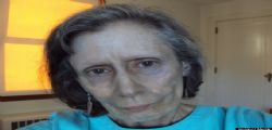 Rosemary Jacobs : malata di argiria ha la pelle blu