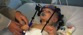Il piccolo  Jackson Taylor  decapitato in un incidente : I medici gli riattaccano la testa