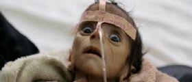 Udai Faisal :il bimbo di 5 mesi morto a causa della guerra in Yemen