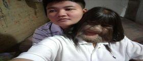 Thailandia : La 17enne Supatra Nat Sasuphan si sposa... è la donna più pelosa al mondo