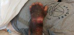 Cagliari : Mio padre abbandonato al Brotzu sporco per ore... gli è stata rubata anche la fede