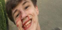 Blair Wilson : 21enne massacrato di botte perché gay, su Facebook sorride