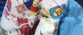 Incidente choc in uno zoo in Cina : Tigre bianca stacca un braccio ad un bimbo di due anni