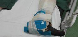 Ospedale di Reggio Calabria : La bufala del cartone al posto del gesso