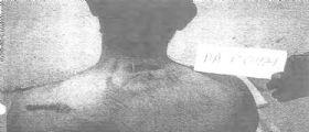 Torture ai detenuti Usa : Il Pentagono pubblica le foto dopo aver perso battaglia legale