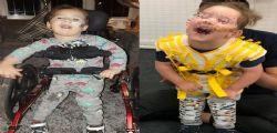 Affetto da paralisi totale, il bimbo di 4 anni cammina per la prima volta