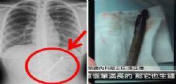 Shing Fang aveva da un anno e mezzo una penna nello stomaco!