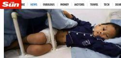 Bruciati i genitali con la candeggina! Il piccolo di 7 anni torturato dalla matrigna