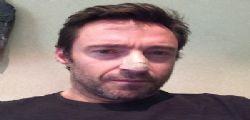 Hugh Jackman ha avuto un tumore alla pelle