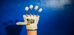 Mano bionica impiantata ad una donna italiana: Intervento rivoluzionario al Gemelli di Roma