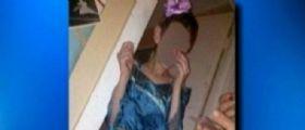 Florida : Bimbo disabile di 10 anni bagna il letto, umiliato dalla madre che posta le foto su Facebook