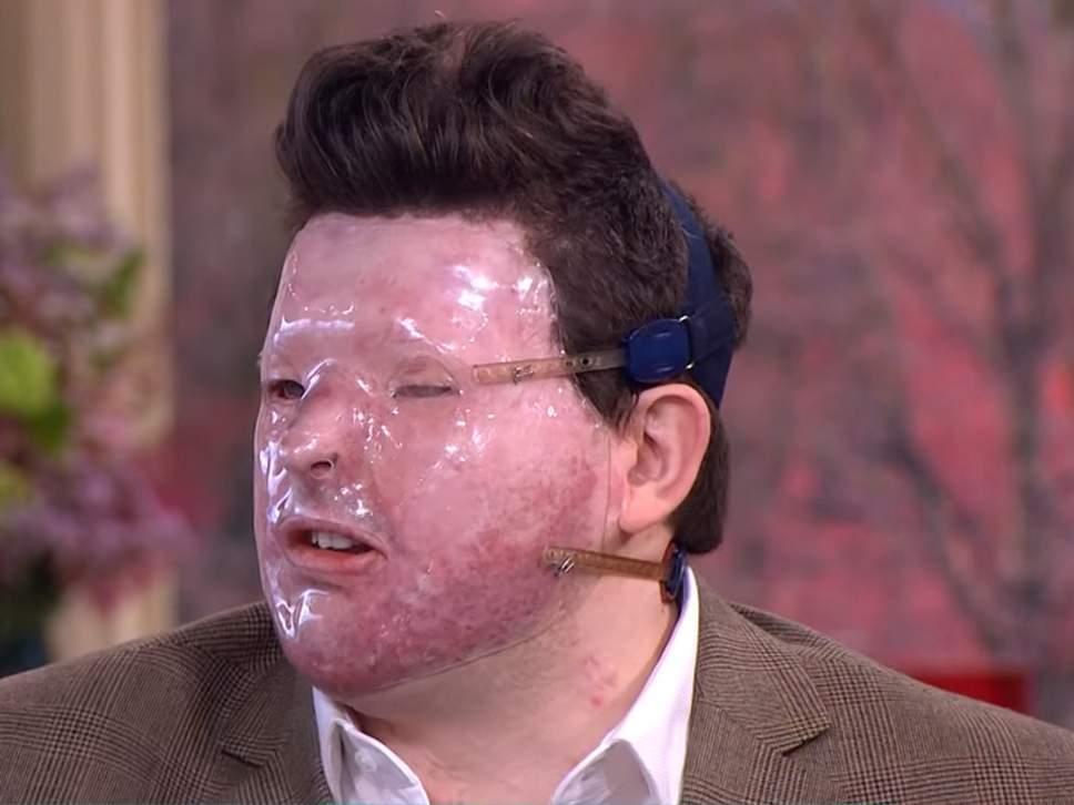 Acido in faccia