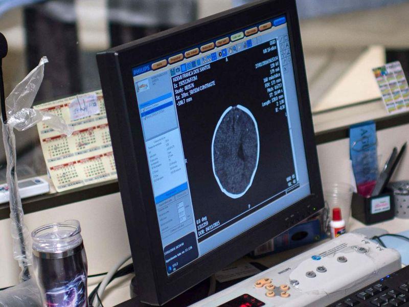 Il Coronavirus colpisce anche il cervello: sintomi nel 75% dei malati